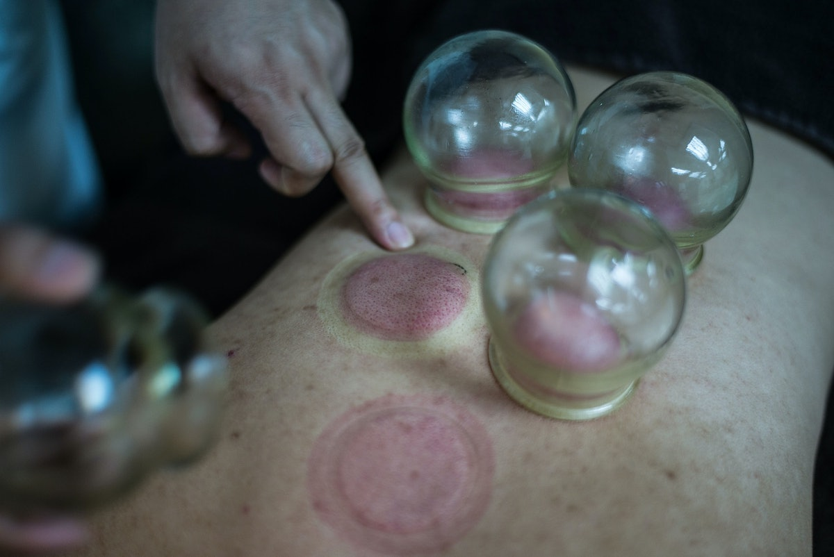 chinese and breast medicine feeding Traditional